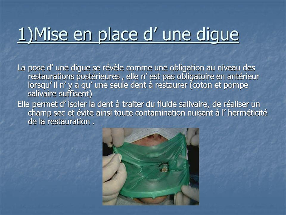 II/ Critères cliniques Si le défaut d herméticité crée un espace entre structure dentaire et matériau, ce hiatus permet l'infiltration d'éléments du m
