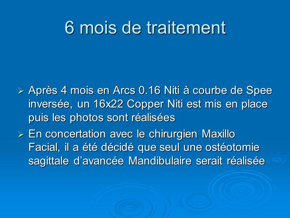 6 mois de traitement Après 4 mois en Arcs 0.16 Niti à courbe de Spee inversée, un 16x22 Copper Niti est mis en place puis les photos sont réalisées Ap