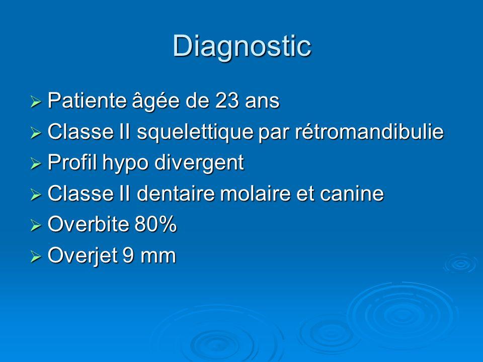 Diagnostic Patiente âgée de 23 ans Patiente âgée de 23 ans Classe II squelettique par rétromandibulie Classe II squelettique par rétromandibulie Profi