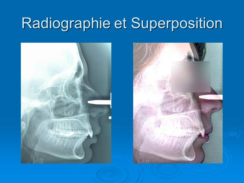Radiographie et Superposition