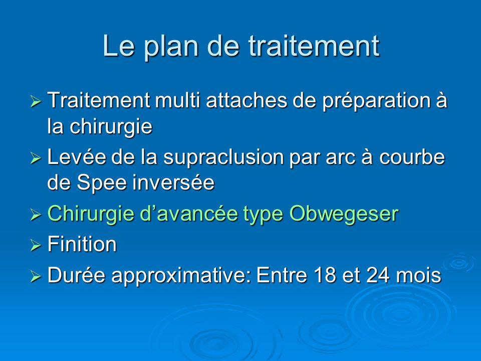Le plan de traitement Traitement multi attaches de préparation à la chirurgie Traitement multi attaches de préparation à la chirurgie Levée de la supr