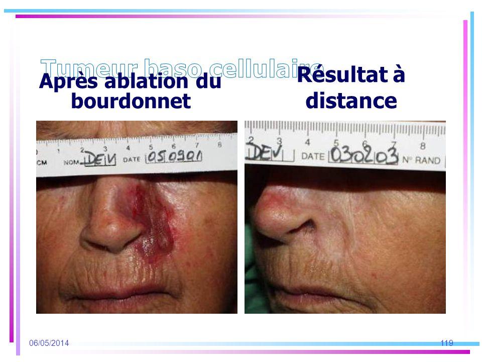 Après ablation du bourdonnet Résultat à distance 06/05/2014119