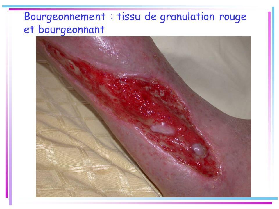 Bourgeonnement : tissu de granulation rouge et bourgeonnant