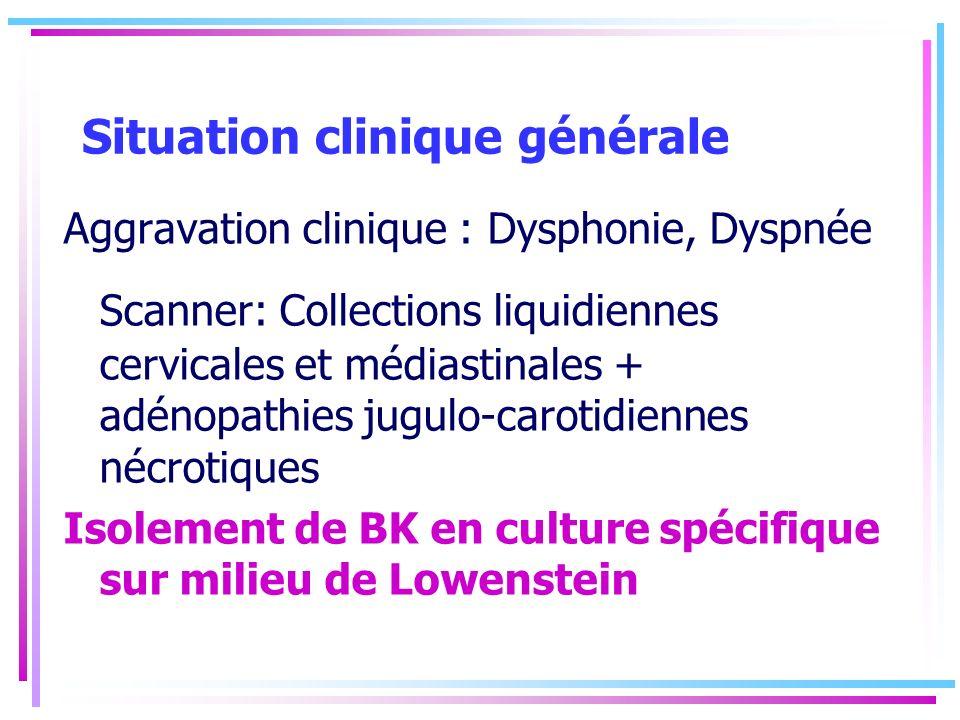 Situation clinique générale Aggravation clinique : Dysphonie, Dyspnée Scanner: Collections liquidiennes cervicales et médiastinales + adénopathies jug