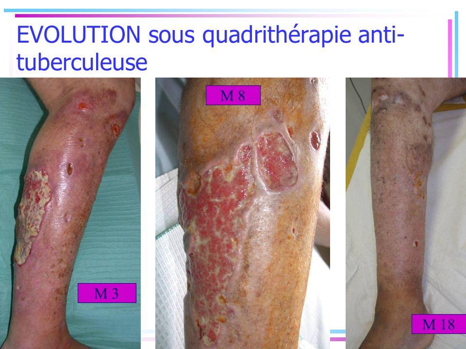 EVOLUTION sous quadrithérapie anti- tuberculeuse M 3 M 8 M 18