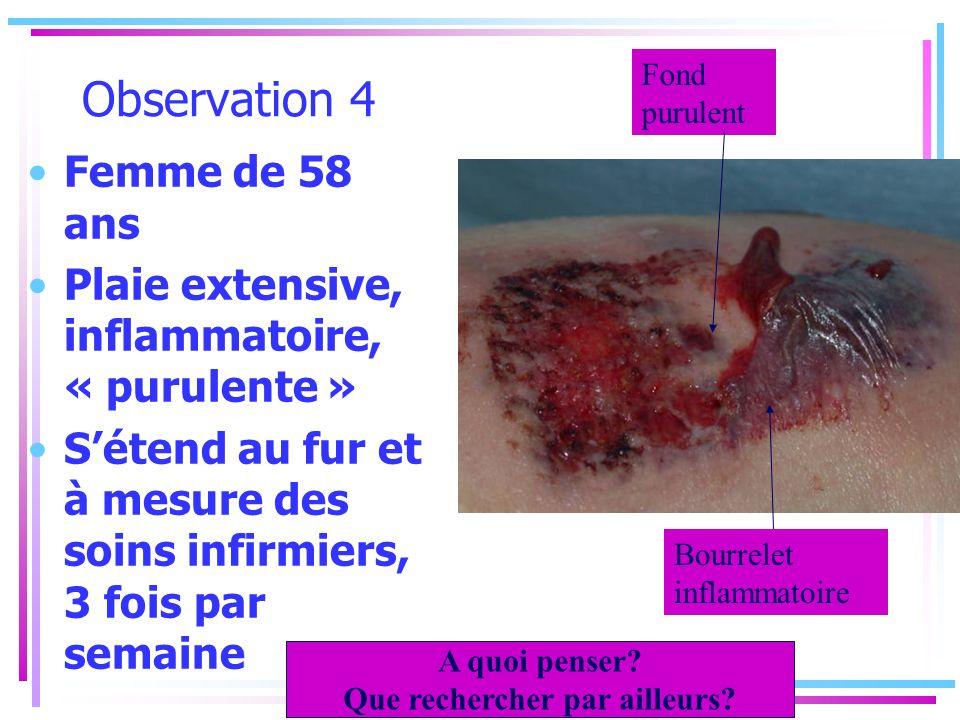 Observation 4 Femme de 58 ans Plaie extensive, inflammatoire, « purulente » Sétend au fur et à mesure des soins infirmiers, 3 fois par semaine Fond pu