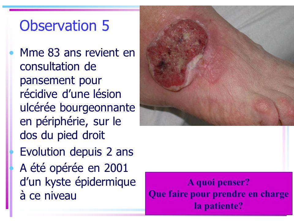 Observation 5 Mme 83 ans revient en consultation de pansement pour récidive dune lésion ulcérée bourgeonnante en périphérie, sur le dos du pied droit