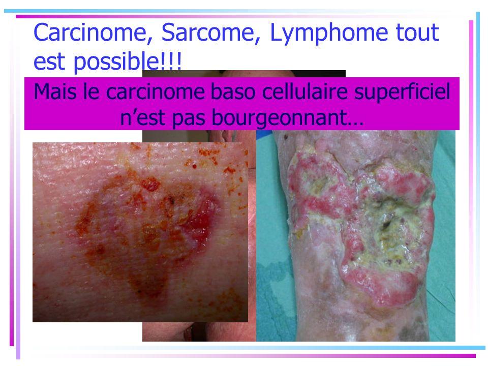 Carcinome, Sarcome, Lymphome tout est possible!!! Mais le carcinome baso cellulaire superficiel nest pas bourgeonnant…