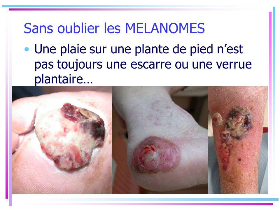 Sans oublier les MELANOMES Une plaie sur une plante de pied nest pas toujours une escarre ou une verrue plantaire…