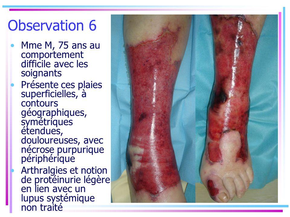 Observation 6 Mme M, 75 ans au comportement difficile avec les soignants Présente ces plaies superficielles, à contours géographiques, symétriques éte