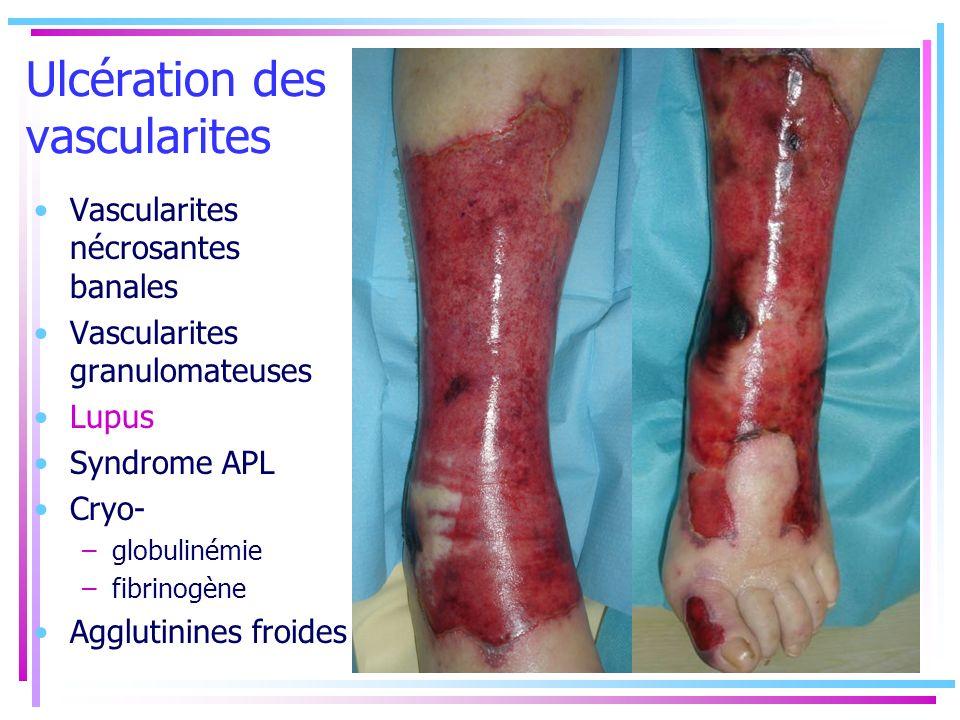 Ulcération des vascularites Vascularites nécrosantes banales Vascularites granulomateuses Lupus Syndrome APL Cryo- –globulinémie –fibrinogène Agglutin