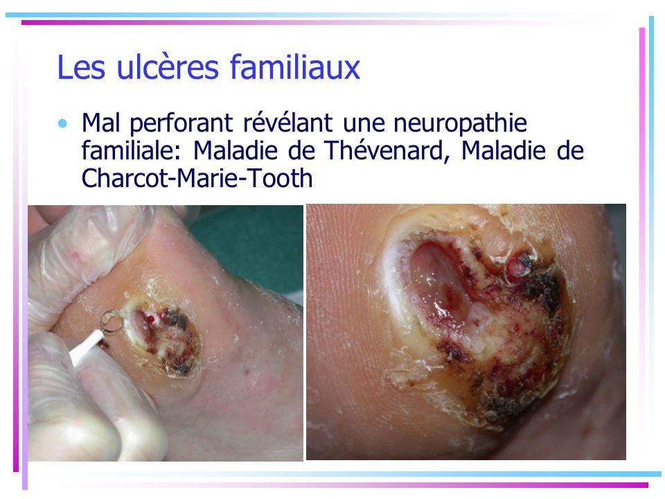 Les ulcères familiaux Mal perforant révélant une neuropathie familiale: Maladie de Thévenard, Maladie de Charcot-Marie-Tooth