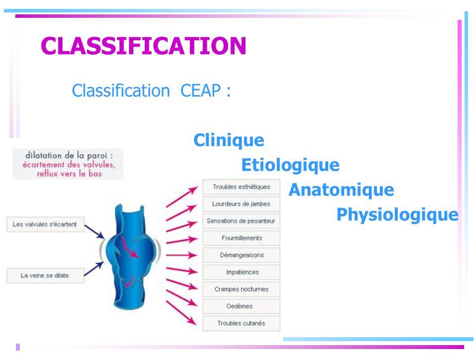 CLASSIFICATION Classification CEAP : Clinique Etiologique Anatomique Physiologique