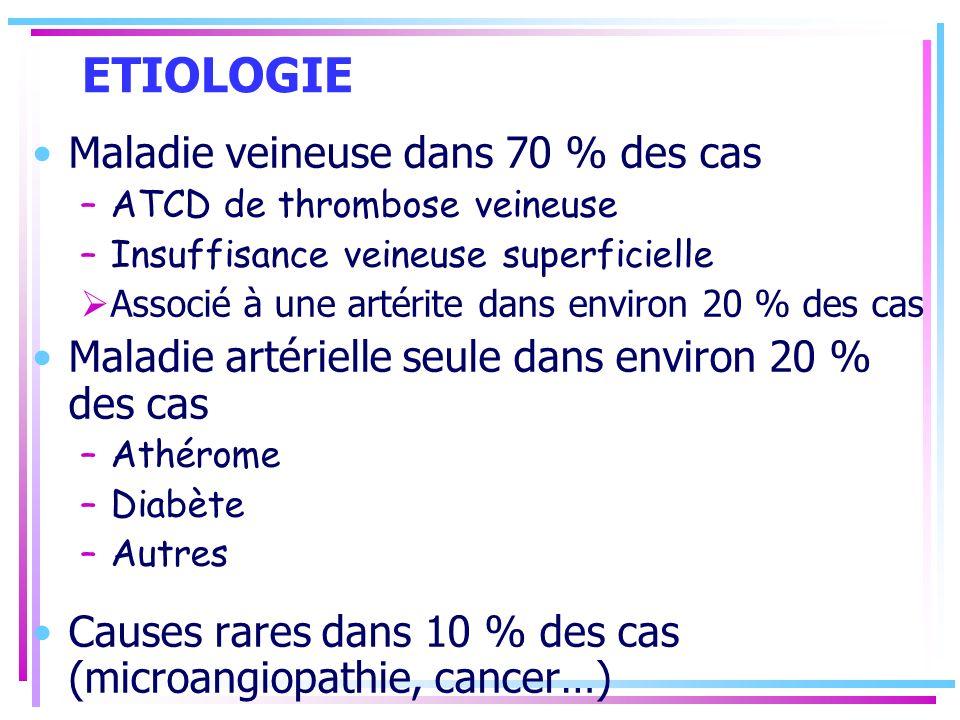 ETIOLOGIE Maladie veineuse dans 70 % des cas –ATCD de thrombose veineuse –Insuffisance veineuse superficielle Associé à une artérite dans environ 20 %