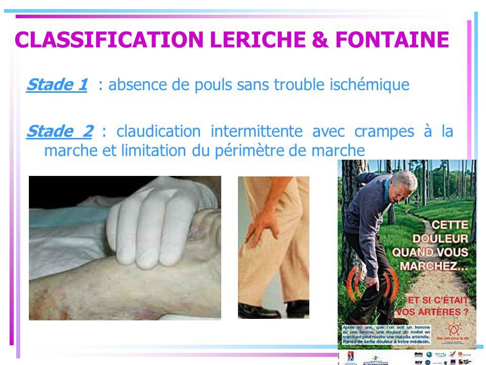 CLASSIFICATION LERICHE & FONTAINE Stade 1 : absence de pouls sans trouble ischémique Stade 2 : claudication intermittente avec crampes à la marche et