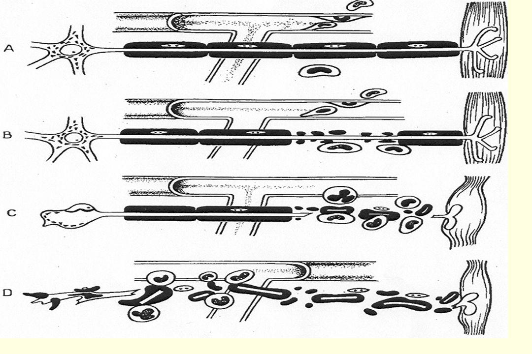 23 Probablement réservée aux patients chez qui la durée de ventilation se prolonge (> 1 mois ?) Avantages : Meilleur confort Sevrage plus facile ( de lespace mort) Inconvénients : Pas toujours accepté par le patient Risques daccroître les complications (intubation prolongée et sténose trachéale) Indication actuelle en nette diminution (impact des mesures spécifiques) TRACHEOTOMIE