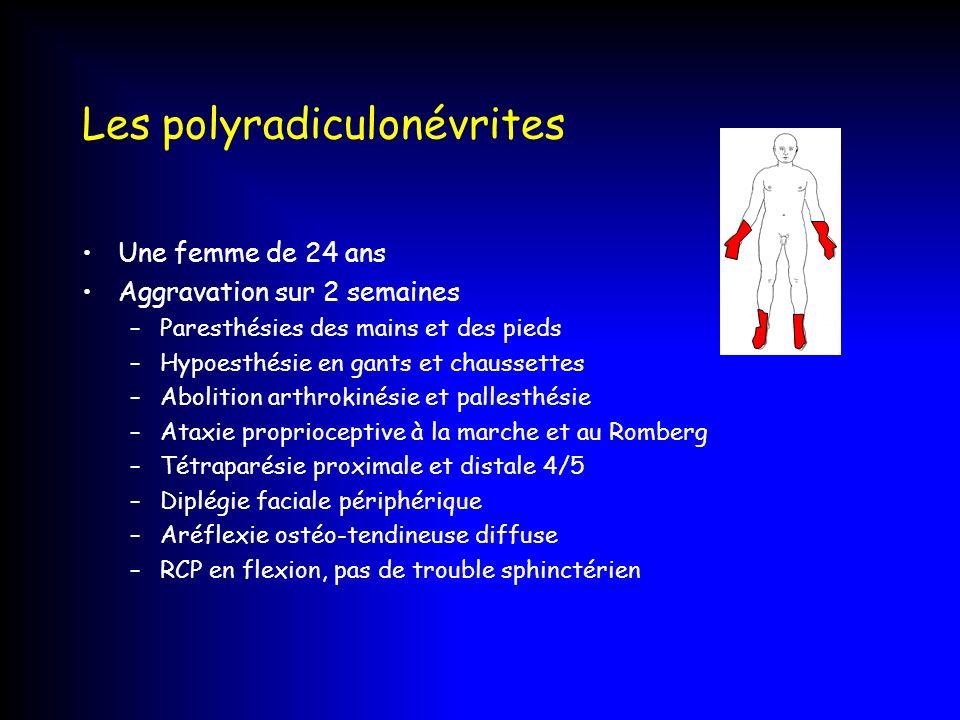 Les polyradiculonévrites Une femme de 24 ans Aggravation sur 2 semaines –Paresthésies des mains et des pieds –Hypoesthésie en gants et chaussettes –Ab