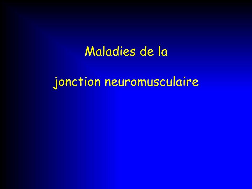 Maladies de la jonction neuromusculaire