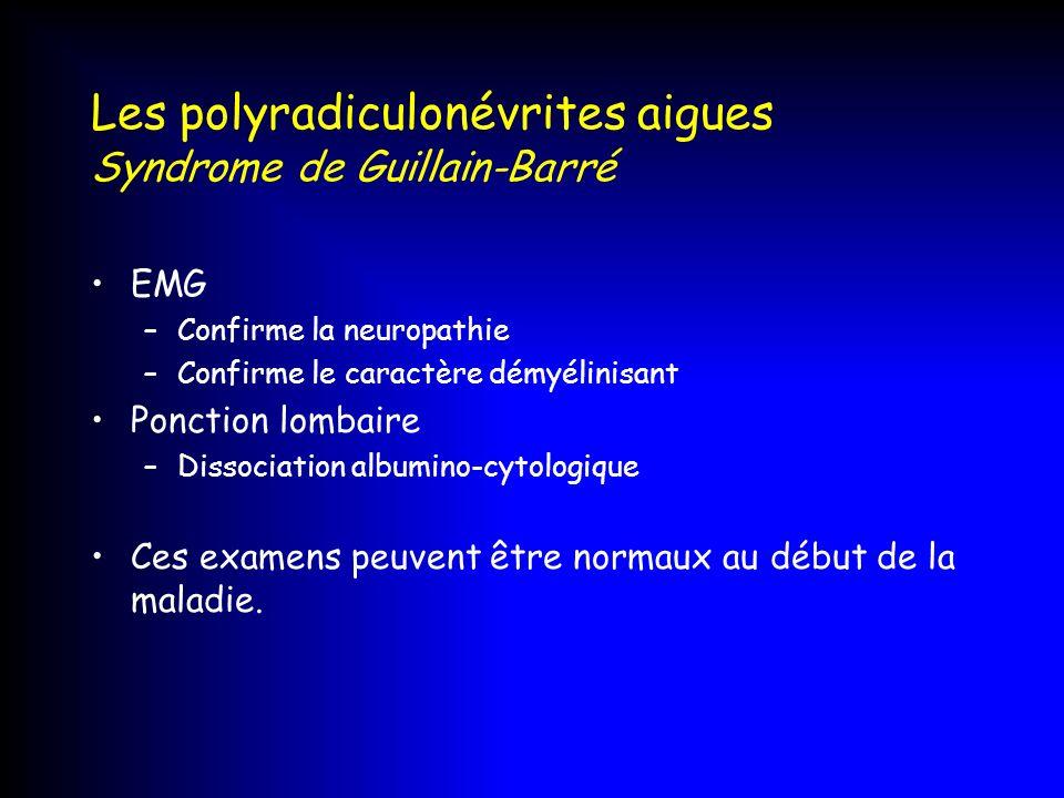 Les polyradiculonévrites aigues Syndrome de Guillain-Barré EMG –Confirme la neuropathie –Confirme le caractère démyélinisant Ponction lombaire –Dissoc