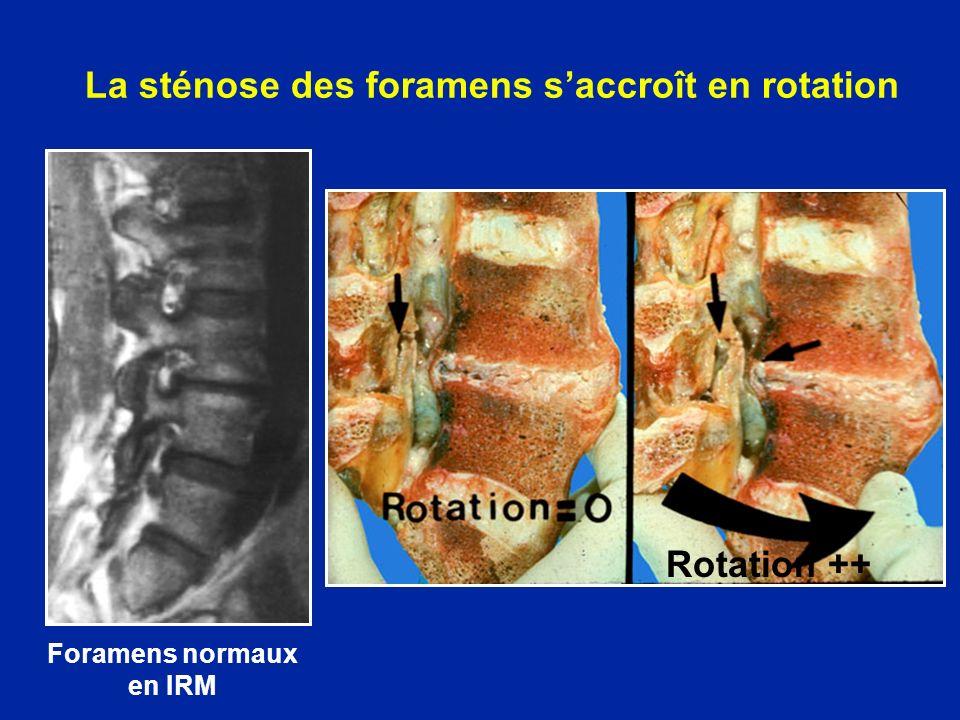 La sténose des foramens saccroît en rotation Foramens normaux en IRM Rotation ++