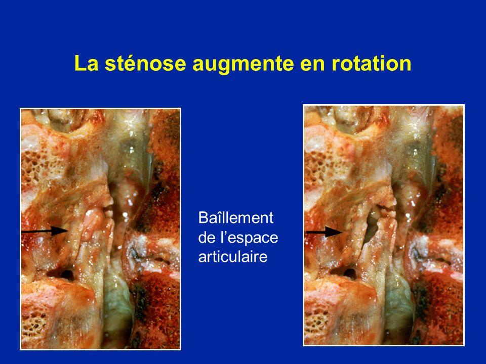 La sténose augmente en rotation Baîllement de lespace articulaire