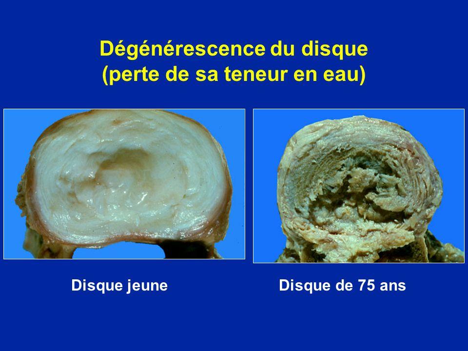 Différents stades de la discopathie Arthrose avec ostéophytes Inter corporéaux