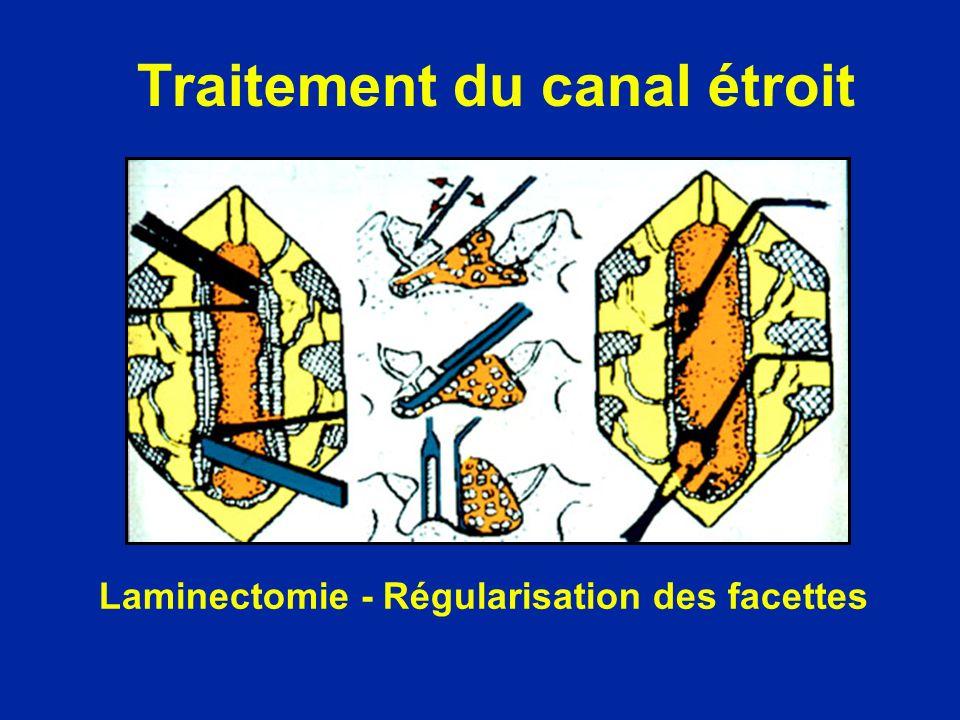 Traitement du canal étroit Laminectomie - Régularisation des facettes