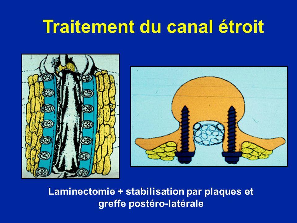 Laminectomie + stabilisation par plaques et greffe postéro-latérale Traitement du canal étroit