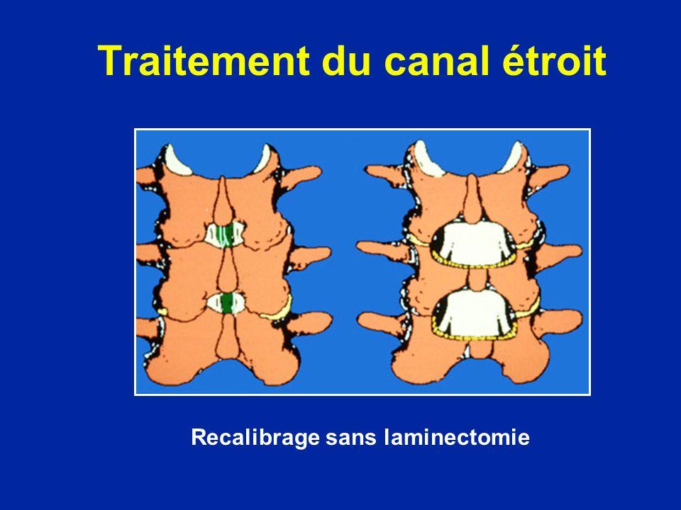 Recalibrage sans laminectomie Traitement du canal étroit