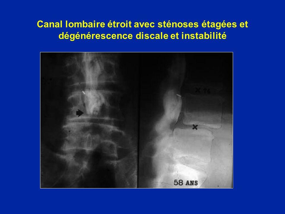 Canal lombaire étroit avec sténoses étagées et dégénérescence discale et instabilité