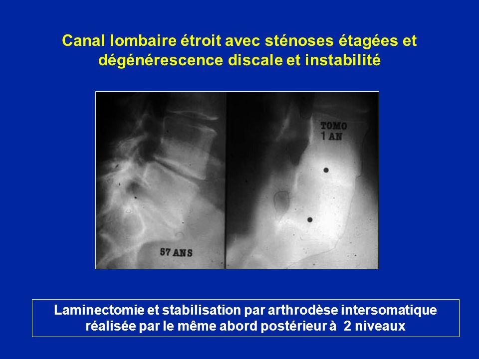Canal lombaire étroit avec sténoses étagées et dégénérescence discale et instabilité Laminectomie et stabilisation par arthrodèse intersomatique réali