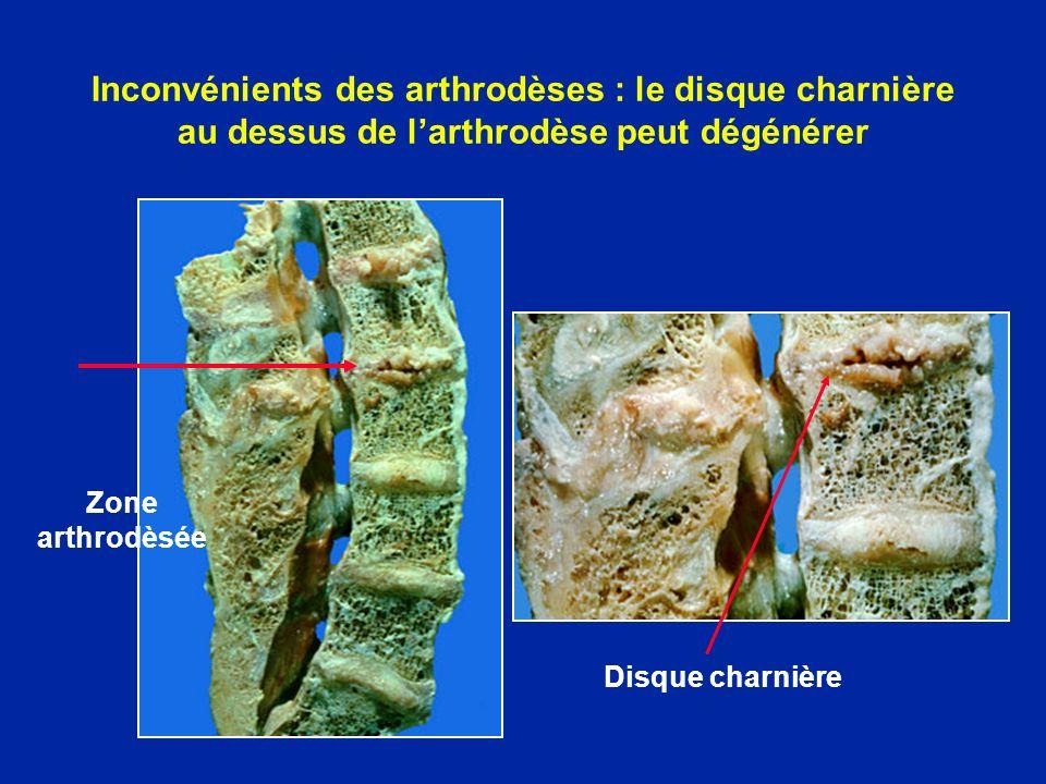 Inconvénients des arthrodèses : le disque charnière au dessus de larthrodèse peut dégénérer Zone arthrodèsée Disque charnière
