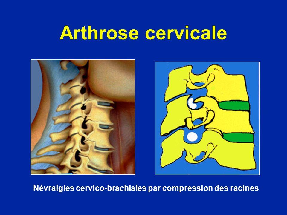 Arthrose cervicale Névralgies cervico-brachiales par compression des racines
