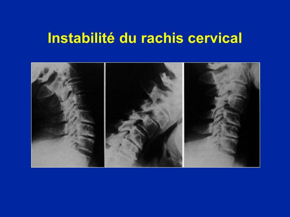 Instabilité du rachis cervical