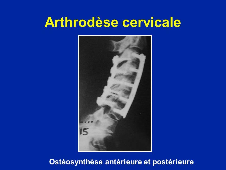 Ostéosynthèse antérieure et postérieure Arthrodèse cervicale