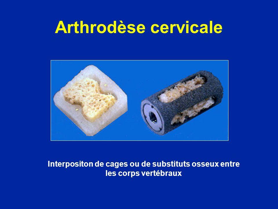 Interpositon de cages ou de substituts osseux entre les corps vertébraux