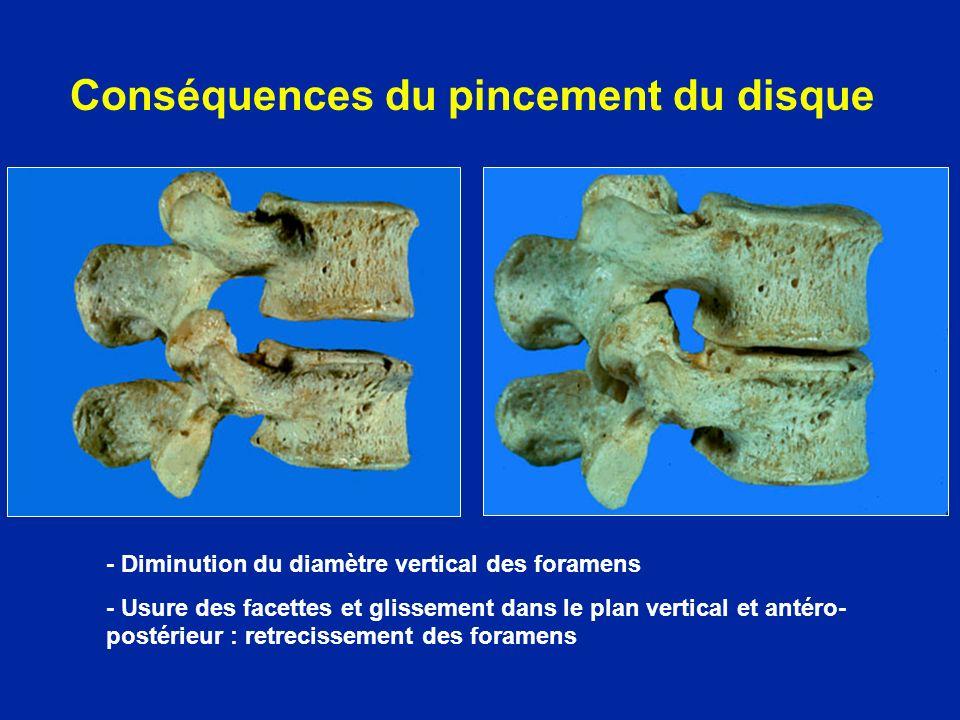 Discopathies étagées avec protrusions discales et ostéophytes mis en évidence par la myélographie Canal lombaire étroit arthosique