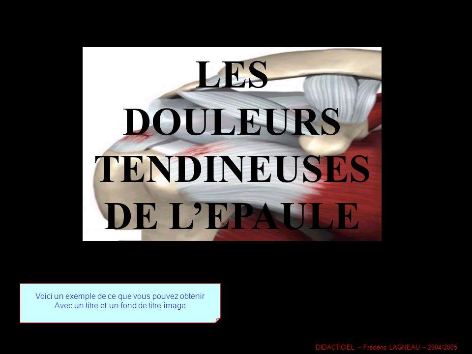 LES DOULEURS TENDINEUSES DE LEPAULE Voici un exemple de ce que vous pouvez obtenir Avec un titre et un fond de titre image DIDACTICIEL – Frédéric LAGNEAU – 2004/2005