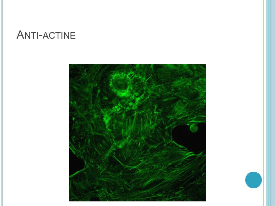 P OLYNUCLEAIRES NEUTROPHILES (ANCA) P-Anca C-Anca MPO et PR3