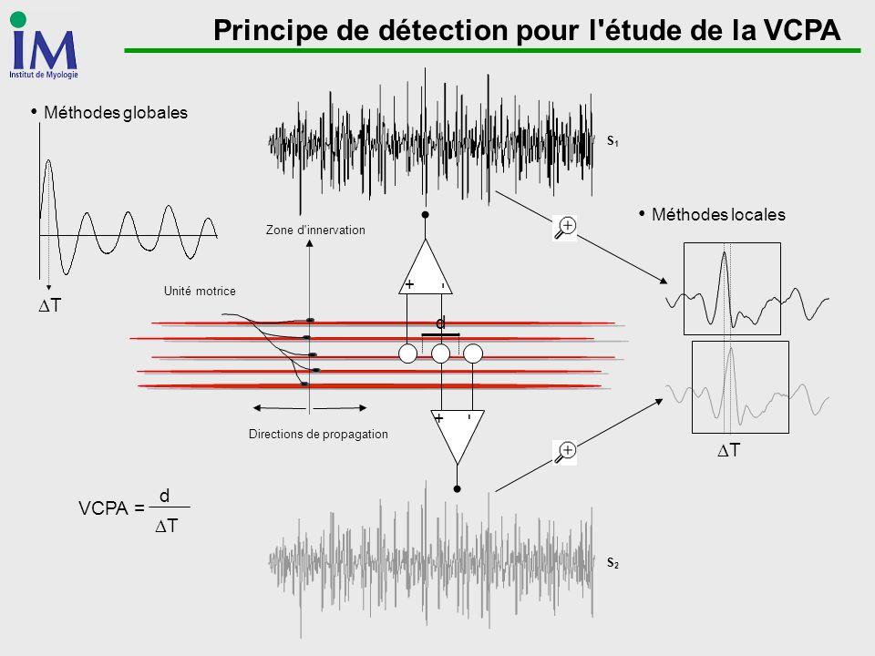 Principe de détection pour l'étude de la VCPA Directions de propagation Unité motrice Zone d'innervation +-+- -+-+ S1S1 S2S2 VCPA = d T d T Méthodes g