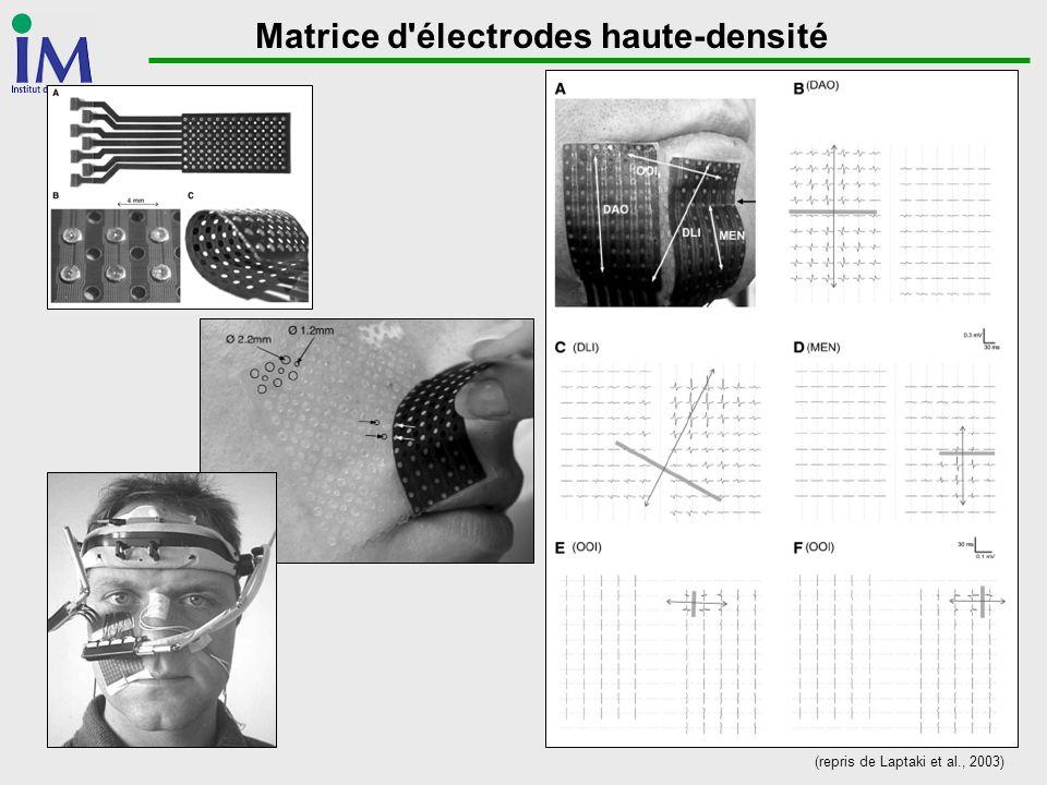 Matrice d'électrodes haute-densité (repris de Laptaki et al., 2003)