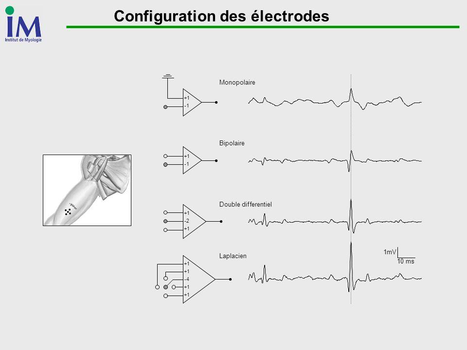 Configuration des électrodes Monopolaire Bipolaire Double differentiel Laplacien 1mV 10 ms +1 +1 +1 -2 +1 -4 +1