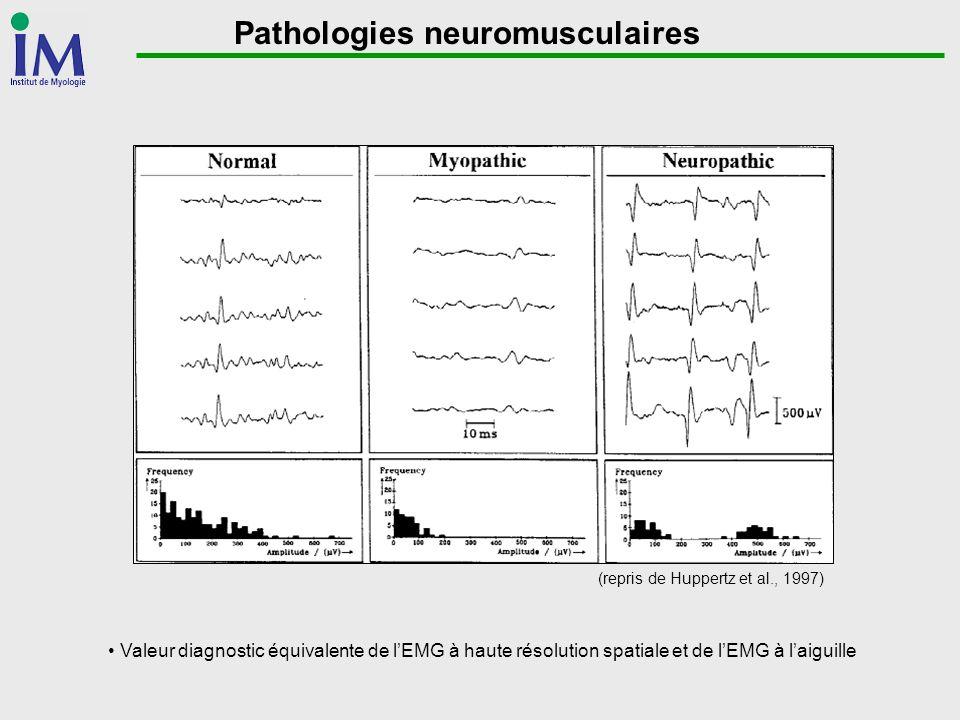 Pathologies neuromusculaires (repris de Huppertz et al., 1997) Valeur diagnostic équivalente de lEMG à haute résolution spatiale et de lEMG à laiguill
