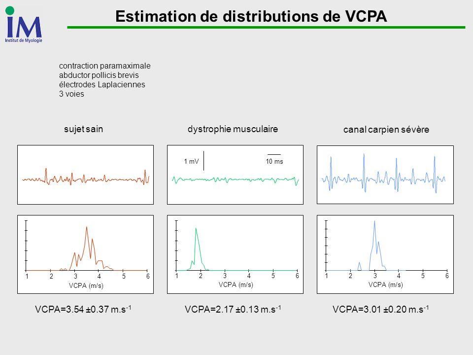Estimation de distributions de VCPA 123456 VCPA (m/s) 123456 VCPA=3.54 ±0.37 m.s -1 VCPA=2.17 ±0.13 m.s -1 VCPA=3.01 ±0.20 m.s -1 10 ms1 mV sujet sain