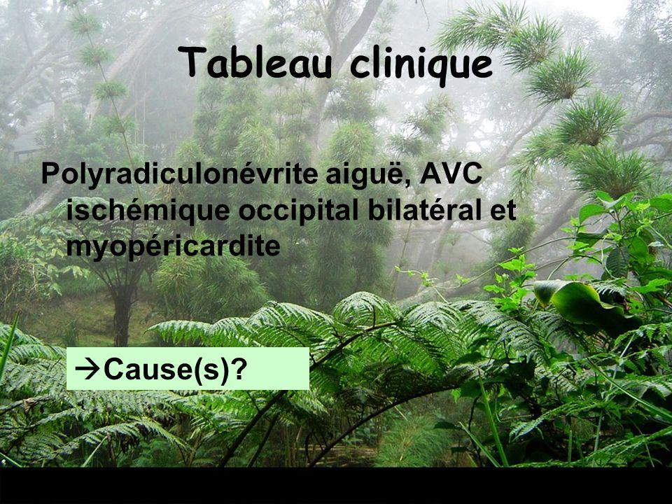 Tableau clinique Polyradiculonévrite aiguë, AVC ischémique occipital bilatéral et myopéricardite Cause(s)?