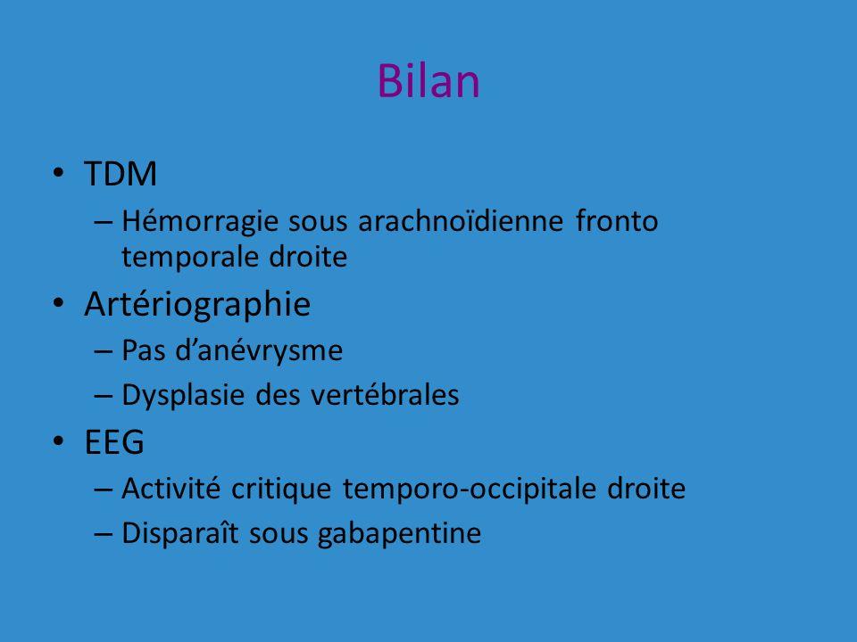 Bilan TDM – Hémorragie sous arachnoïdienne fronto temporale droite Artériographie – Pas danévrysme – Dysplasie des vertébrales EEG – Activité critique temporo-occipitale droite – Disparaît sous gabapentine