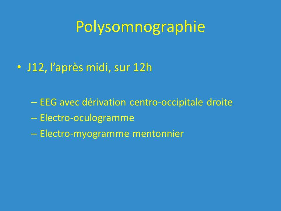 Polysomnographie J12, laprès midi, sur 12h – EEG avec dérivation centro-occipitale droite – Electro-oculogramme – Electro-myogramme mentonnier