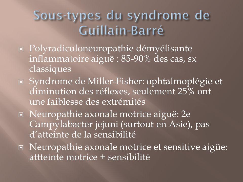 Polyradiculoneuropathie démyélisante inflammatoire aiguë : 85-90% des cas, sx classiques Syndrome de Miller-Fisher: ophtalmoplégie et diminution des r