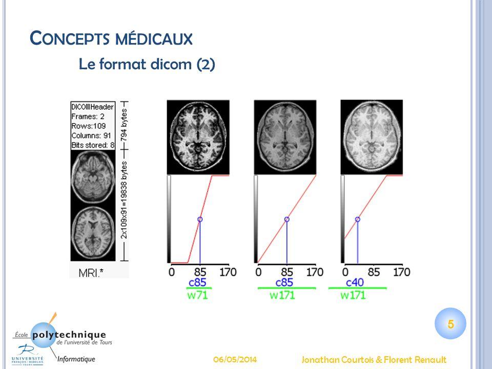 C ONCEPTS MÉDICAUX La sténose carotidienne La carotide interne irrigue le cerveau La plaque dathérome NASCET, ECTS Risque dinfarctus Quels patients opérer .