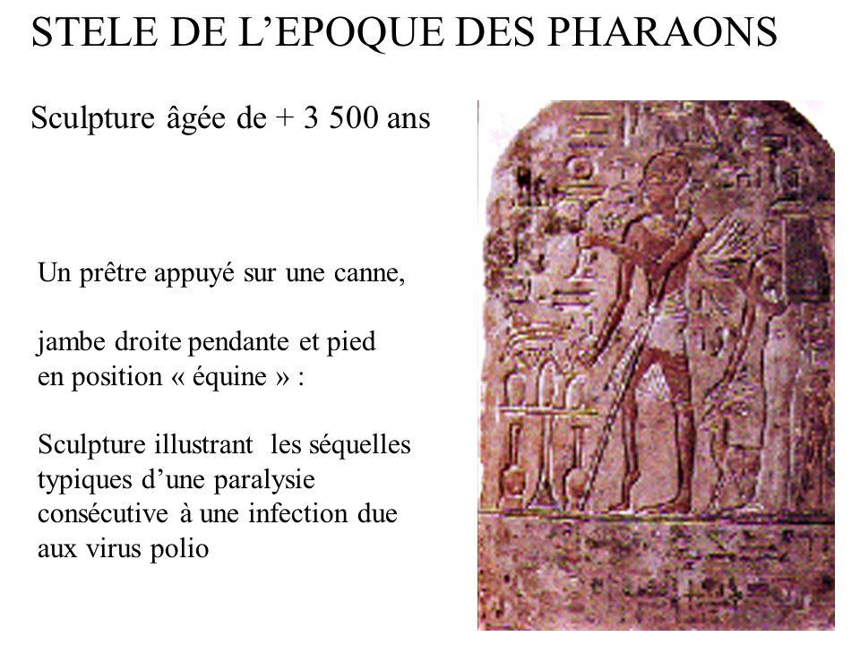Un prêtre appuyé sur une canne, jambe droite pendante et pied en position « équine » : Sculpture illustrant les séquelles typiques dune paralysie consécutive à une infection due aux virus polio STELE DE LEPOQUE DES PHARAONS Sculpture âgée de + 3 500 ans